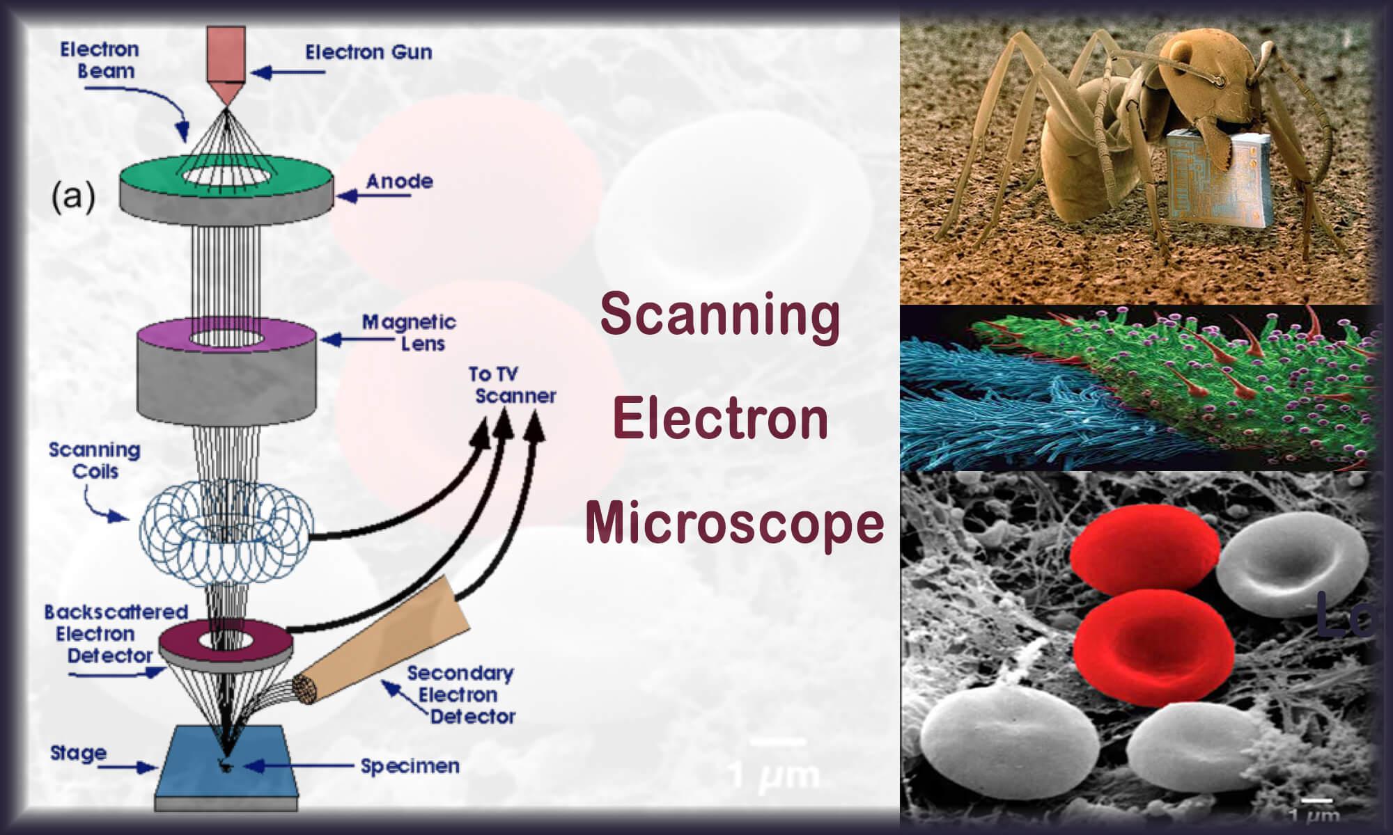 میکروسکوپ الکترونی | میکروسکوپ الکترونی چگونه کار میکند؟| SEM
